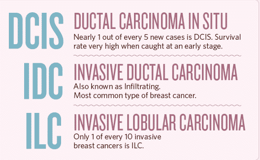 Common-Type-of-Breast-Cancer